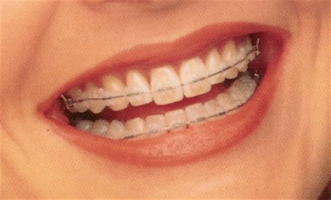 clear teeth brace picture 15