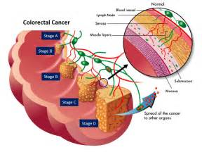colon cancer and stages picture 2