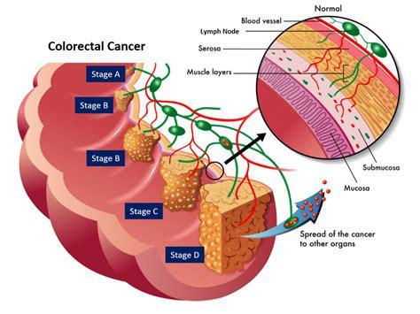 colon cancer surgery prognosis picture 3