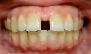 average price to close gaps in teeth picture 6