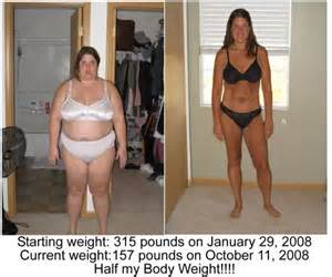 to much weight loss after bariatric surgery picture 5