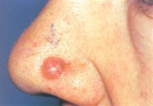 pictures of basil skin cancer picture 5