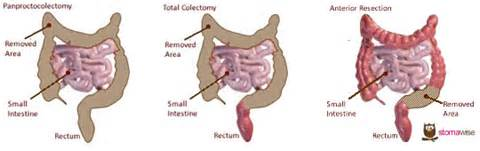 what is a bowel loop picture 14