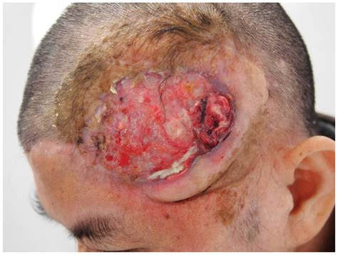 friction burn and skin grafting picture 10