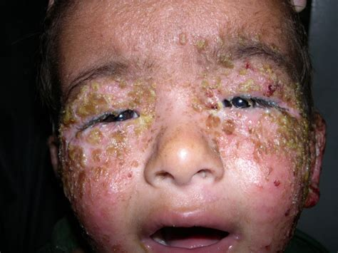 can herpes cause graves disease picture 3
