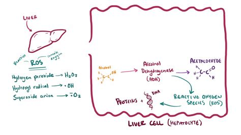 alcohol induced liver disease picture 15