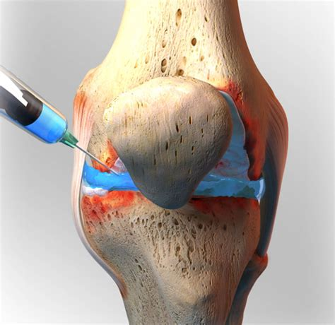 cortisone cause joint pain picture 11