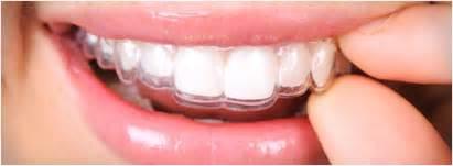 false teeth permanent picture 5