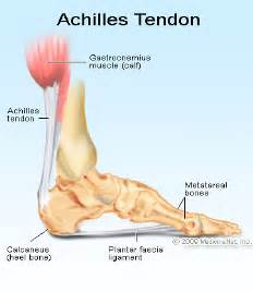 ankle joint effusion and ruptured archilles tendon picture 19
