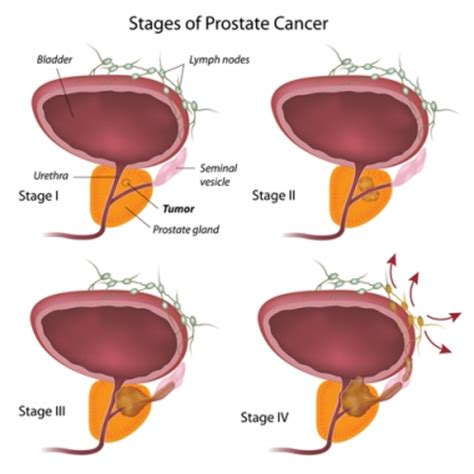 an enlarged spleen and having prostate cancer mean picture 14
