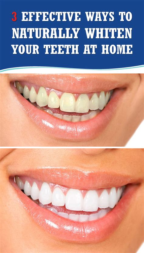 can you whiten teeth naturally picture 11