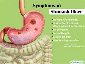diagnosis of gastrointestinal ulcers picture 2