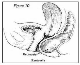 ana,s biggest bulging bladder picture 7