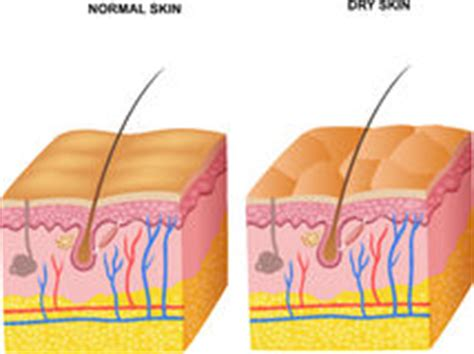 free illustrations of human skin picture 15