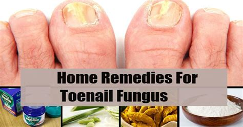 remedies for toenail fungus+ painting toenails picture 6