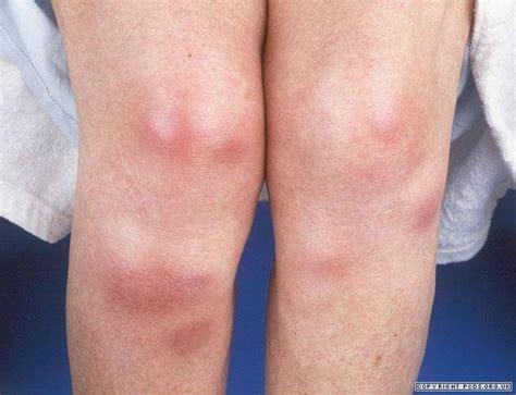 fungal skin rash picture 6