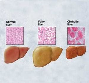 cirrhosis liver early symptoms picture 9