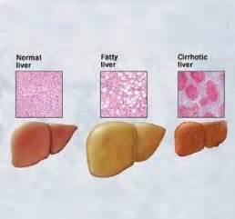alcoholic fatty liver picture 13