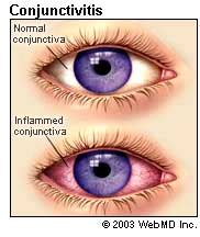 will bacterial pink eye reside picture 9