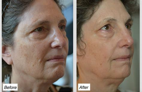 acne laser treatment picture 5
