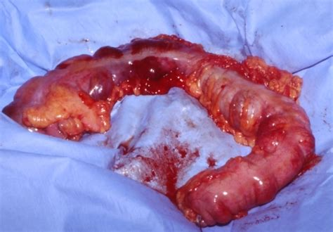 pneumatosis intestinalis of the right colon picture 4