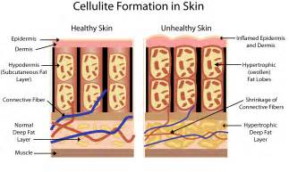 what is cellulite picture 13