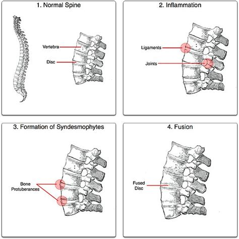 severe joint pain picture 2