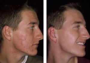 derma e tea tree oil and vitamin e and acne picture 11