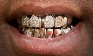 dimond crown teeth picture 1