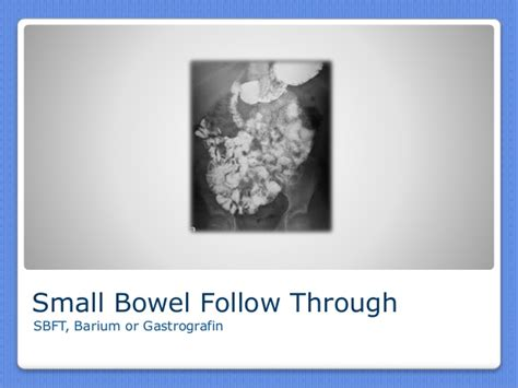 fluoroscopy and small bowel follow through picture 15
