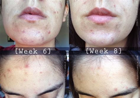 what is cystic acne picture 11