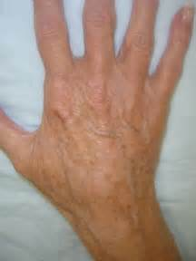 hitting the blood veins in hands what are picture 17