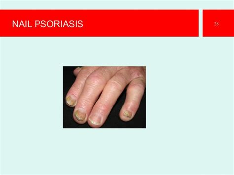 best psoriasis doctor in the philippines picture 6
