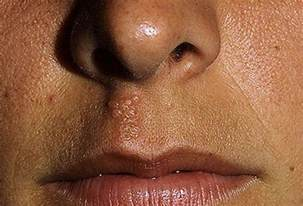 herpes around the mouth picture 7