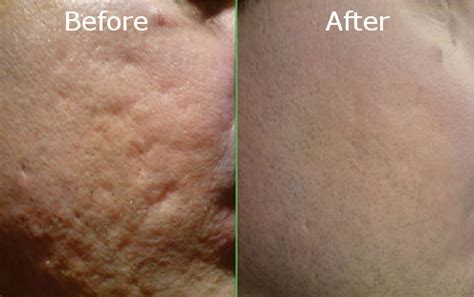 deep acne scars removal picture 2