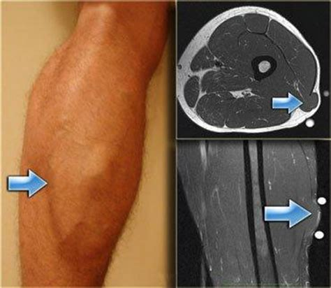 lump in leg muscle picture 2