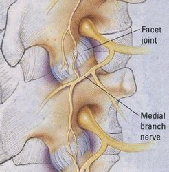 facet joint nerve ablation picture 9