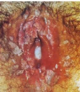 vaginal bacterial vaginitis picture 3