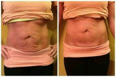 excess skin after weight loss picture 6