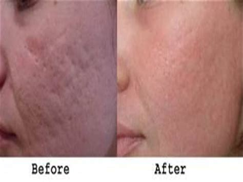 laser remove stretch marks picture 9