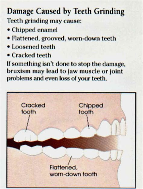 herbal treatment for bruxism picture 5