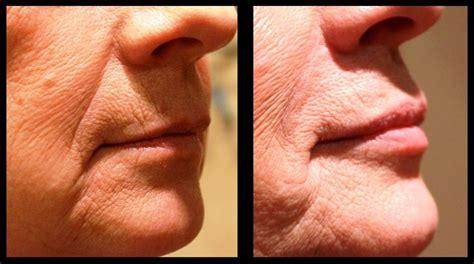 az vein skin rejuvenation picture 6