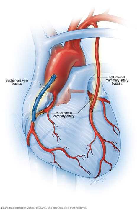 coronary blood flow picture 1