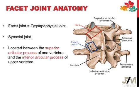 facetal joint disease picture 13