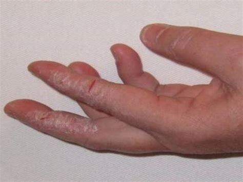broken skin on under arm picture 11
