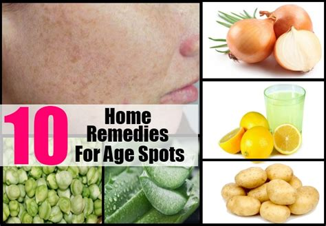 aging spots cure picture 6
