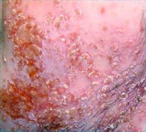 fungal infection of the skin picture 17