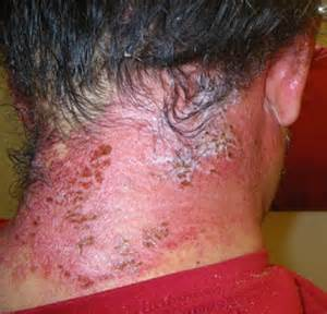 allergic reactions hair dye picture 2