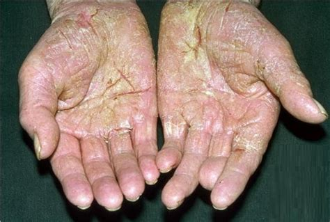 what is a plantar wart picture 9