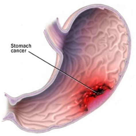 el cancer symptoms disorder picture 3